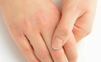крем для потрескавшихся рук