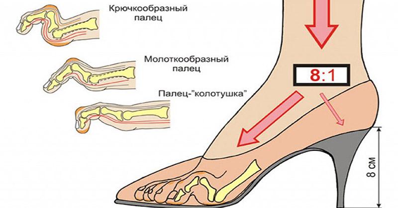 оптимальная высота каблука, какой высоты должен быть каблук